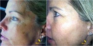 case 2 before and after - after 3 treatments