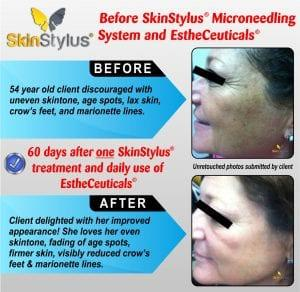 Microneedling Treatment - Before and After