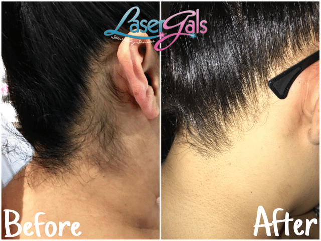 Laser Hair Removal - Yuma. AZ 85365 - Laser Gals Skin Studio